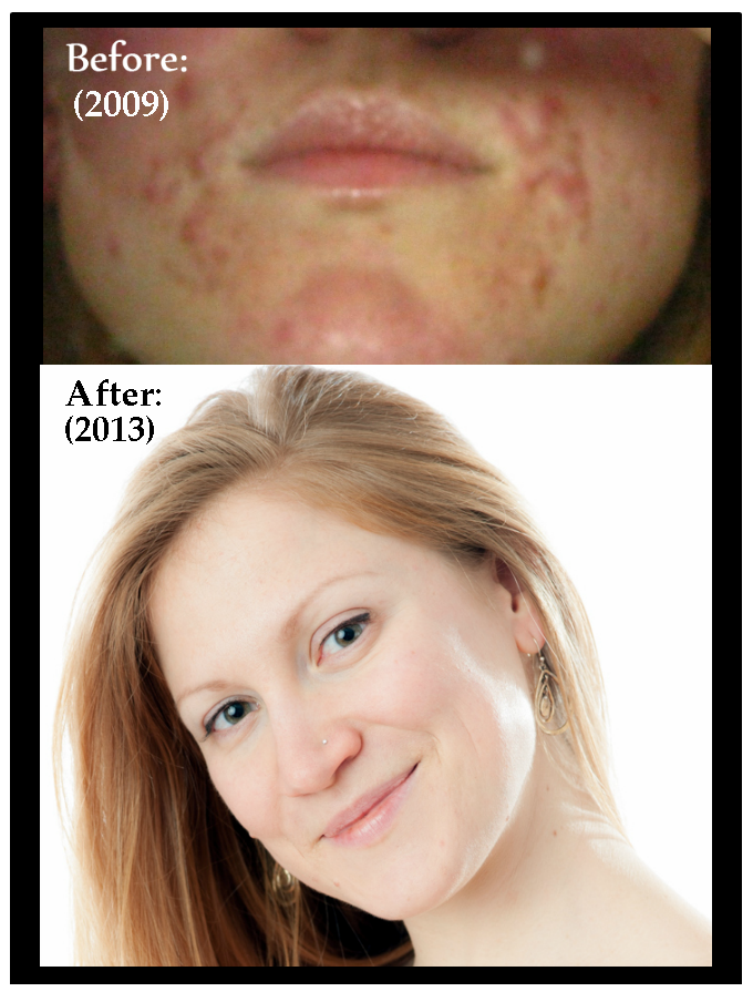 ULTIMATE SECRETS TO ACNE FREEDOM PDF DOWNLOAD